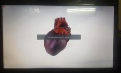 برگزاری همایش قلب